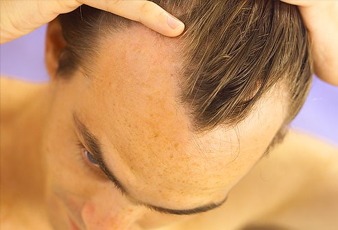 Analisi di ormoni a una perdita di capelli a donne