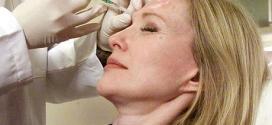 Iniezioni di botox per distendere le rughe col botulino