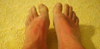 scottatura sole piedi