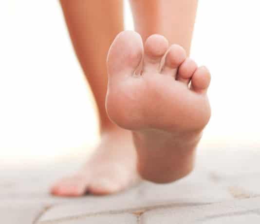 verruche ai piedi