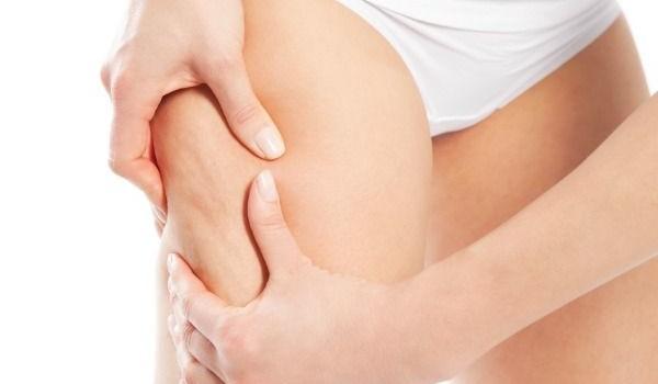 Combattere-la-cellulite