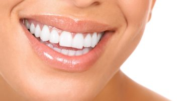 sbiancare denti