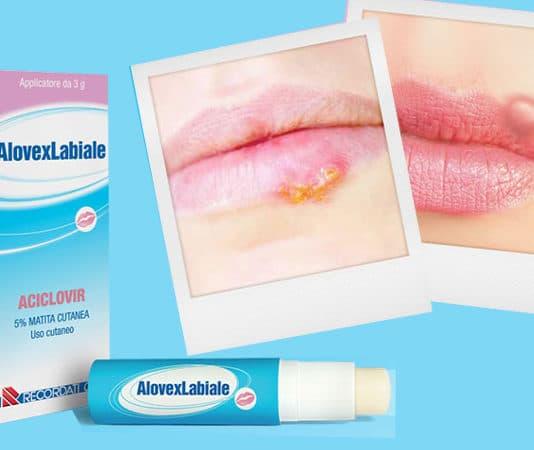 alovex labiale stick herpes