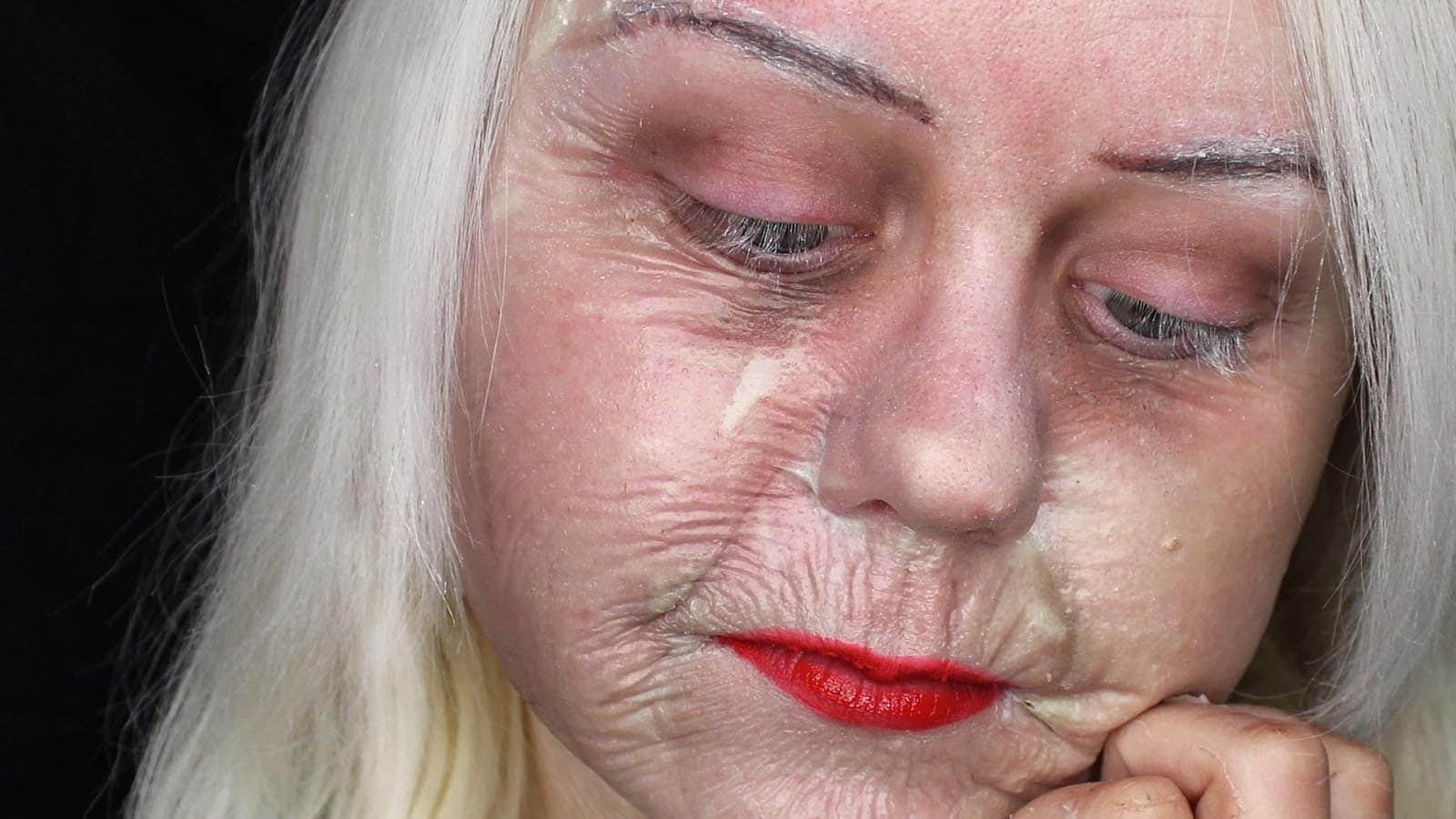 Il pigmentary nota su pelle che questo