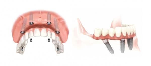 Implantologia osteointegrata