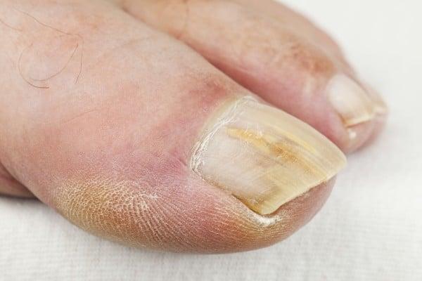 Se come imparare un fungo su unghie di mani