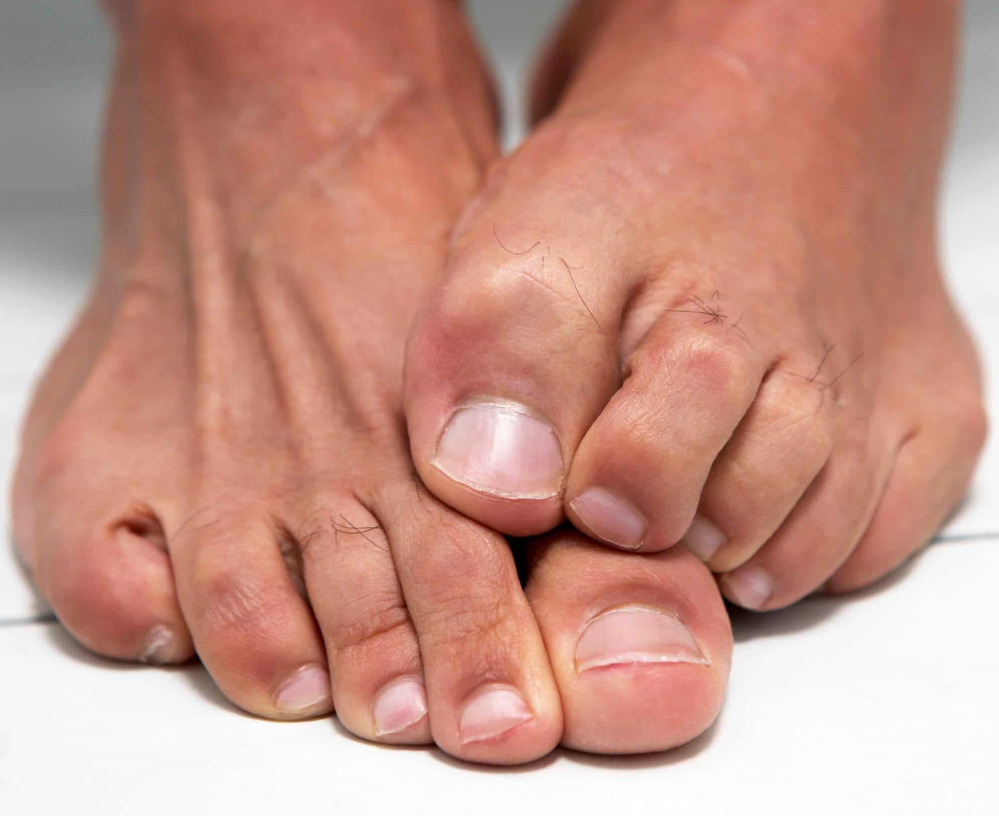 come curare i funghi sotto le unghie dei piedi