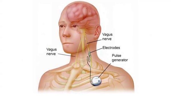 Malattie di ghiandole sebaceous di unacne