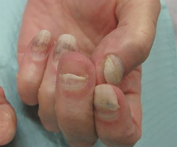 Toenail Lifting From Nail Bed 28 Images What Is
