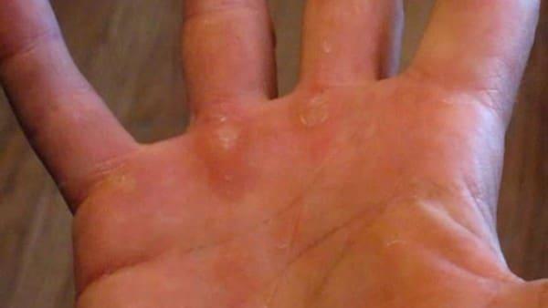 calli-duroni-acido-salicilico-mani