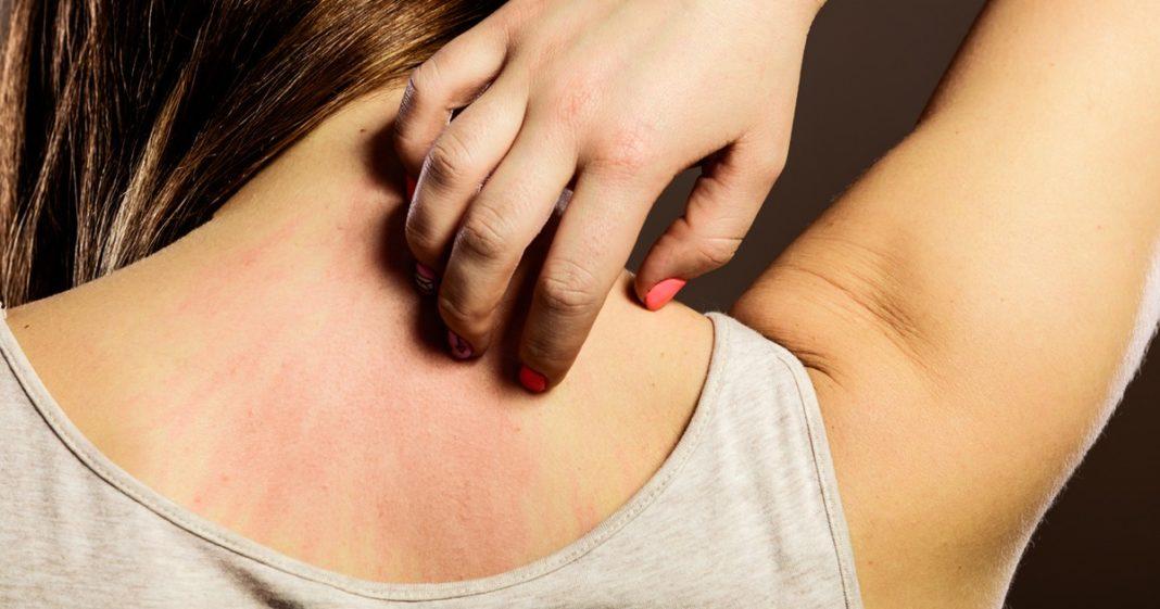 sostanze-irritanti-pelle