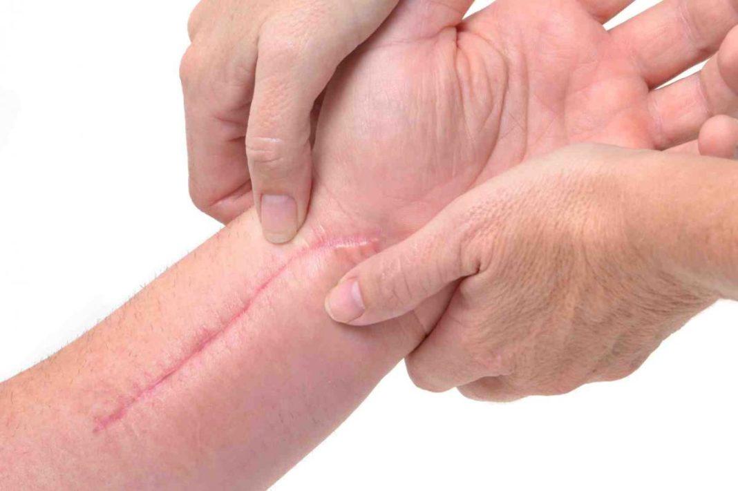 cicatrici rimedi naturali