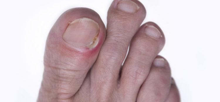 Sei rimedi fatti in casa per combattere le unghie - Rimedi per le formiche in casa ...