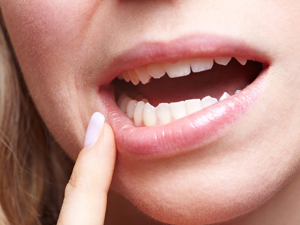 boccarola tagli bocca