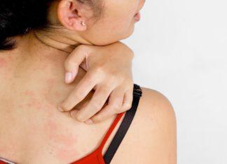 crema naturale per eczema