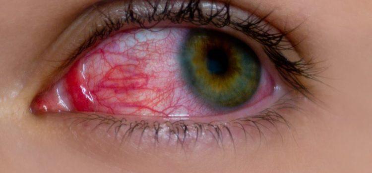 occhio rosso uveite congiuntivite