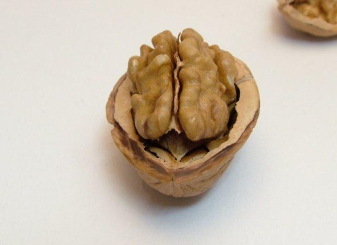 noci cervello