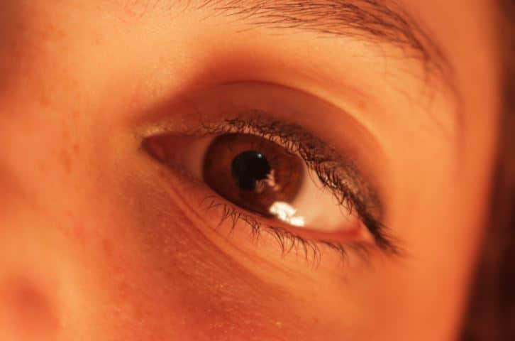 occhiaie occhi gonfi