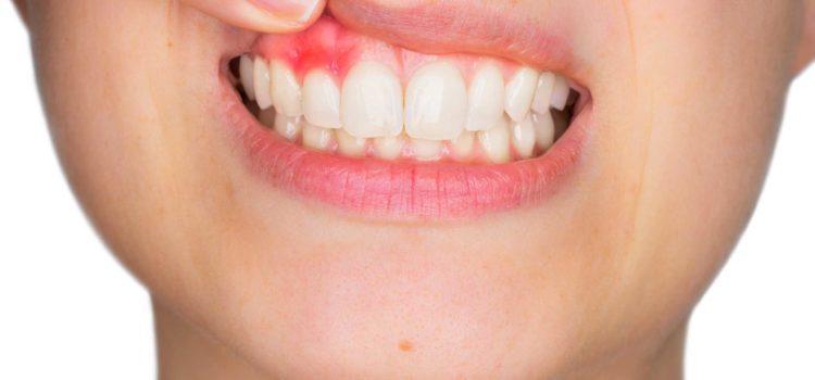 rimedi naturali per ascesso dentale