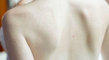 acne schiena