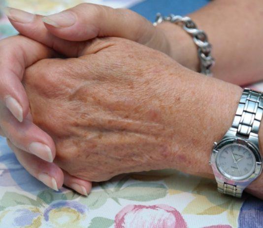 macchie scure sulle mani
