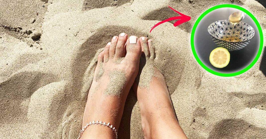 piedi-screpolati-spiaggia